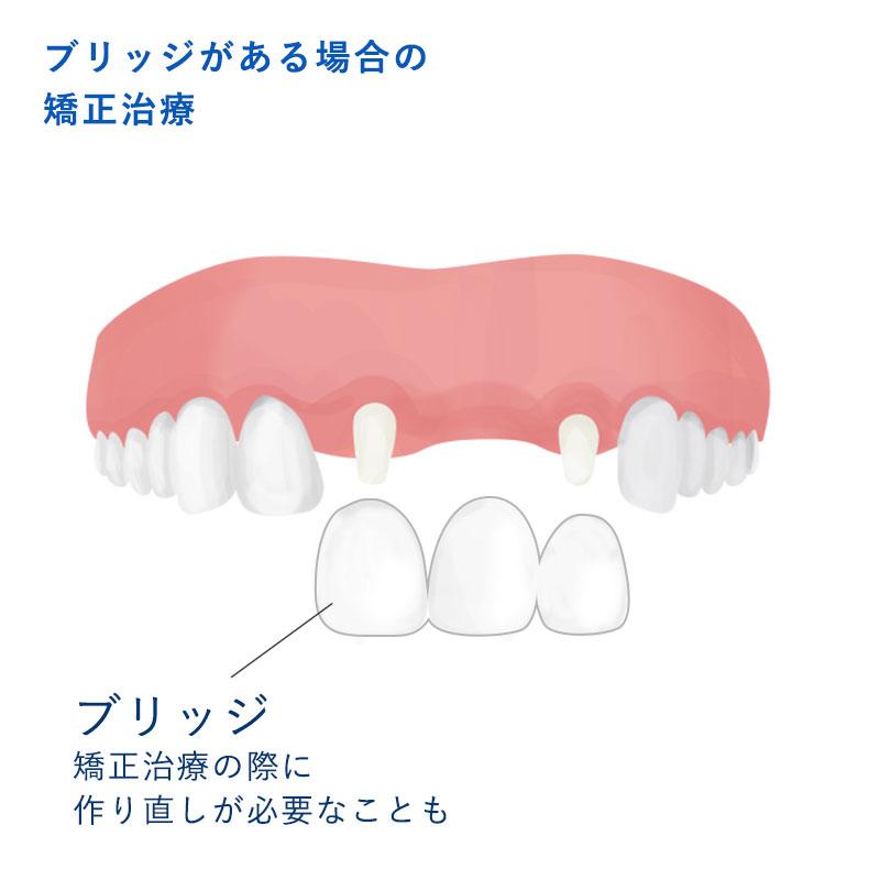 セラミック連結冠と支台歯・欠損イラスト
