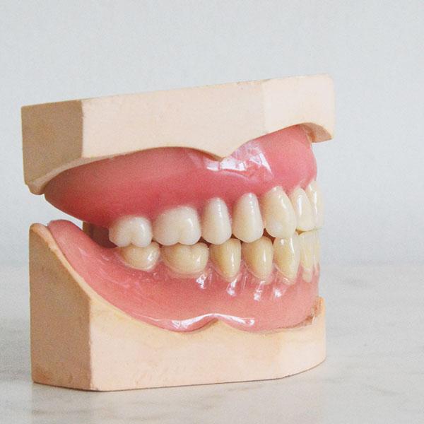歯槽骨と歯のイメージ
