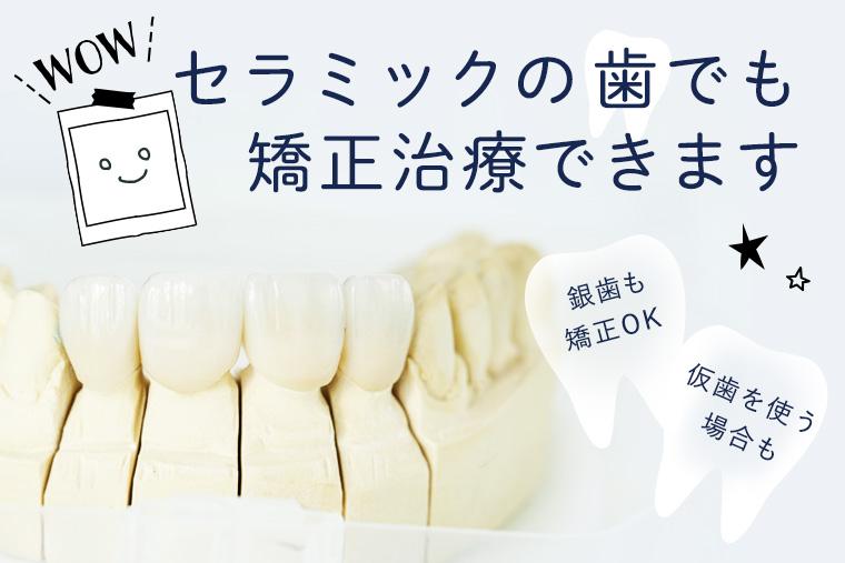 セラミックの歯があっても矯正できる?