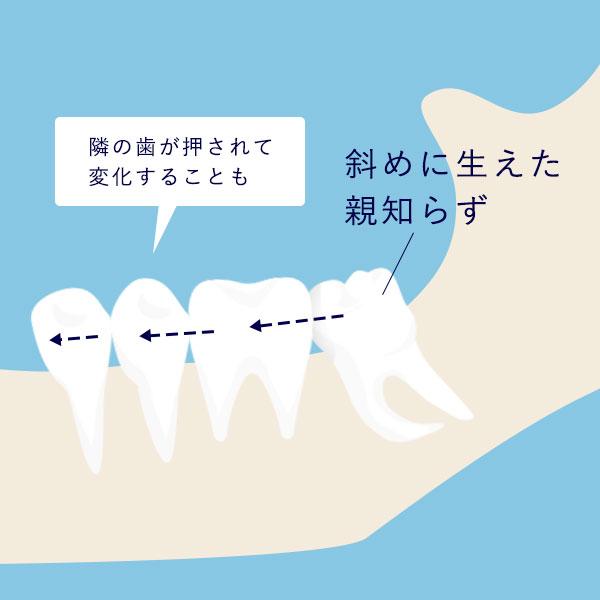 親知らずが生えている歯を押す様子